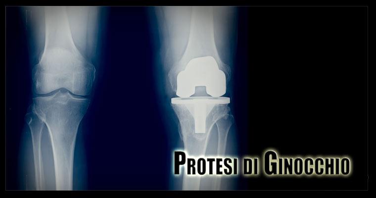 protesi ginocchio intro