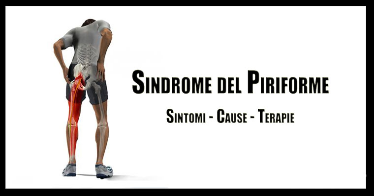 Sindrome piriforme copertina