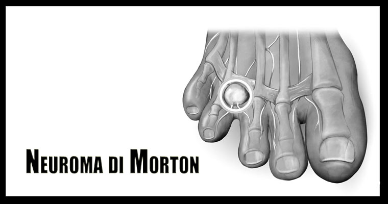 Neuroma di Morton Intro