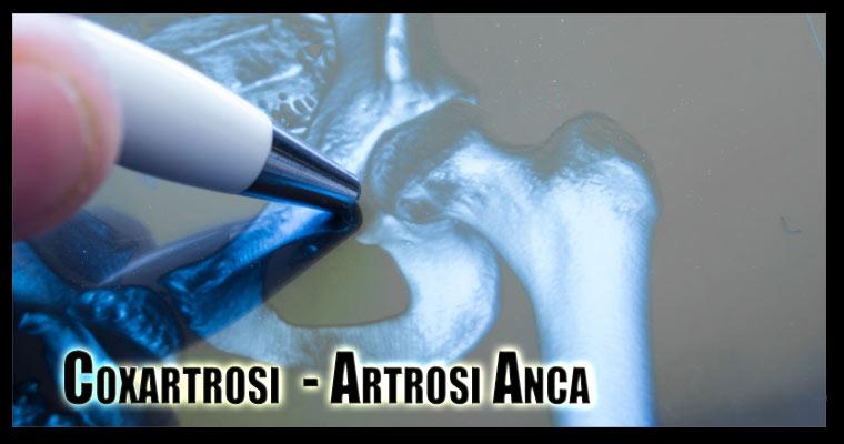 coxartrosi artrosi anca rx