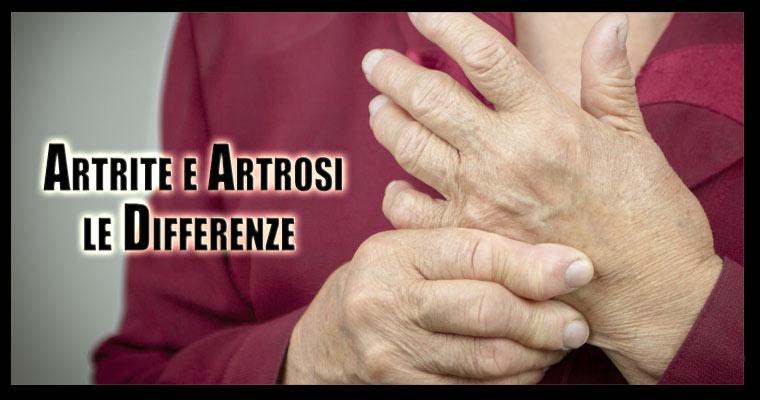 Differenze tra artrite e artrosi