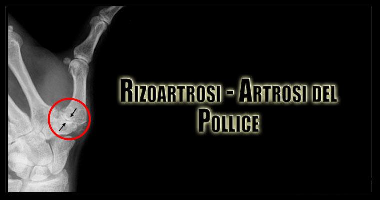 Rizoartrosi