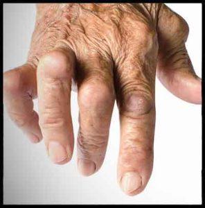 artrite reumatoide mani