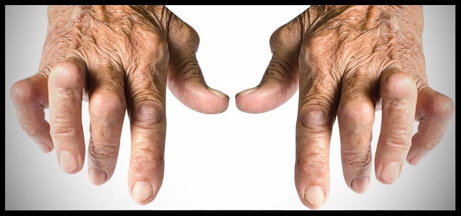Artrite reumatoide, come contrastare la malattia