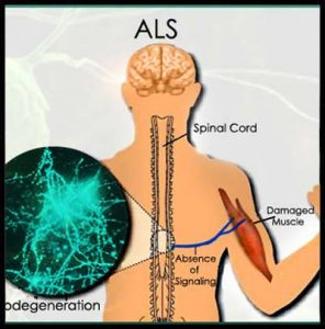 sla-sclerosi amiotrofica laterale