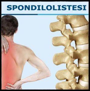 dolore al collo dellinclinazione pelvica anteriore