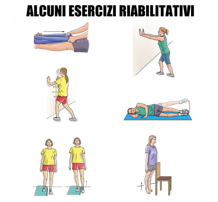 esercizi tendinite d'Achille